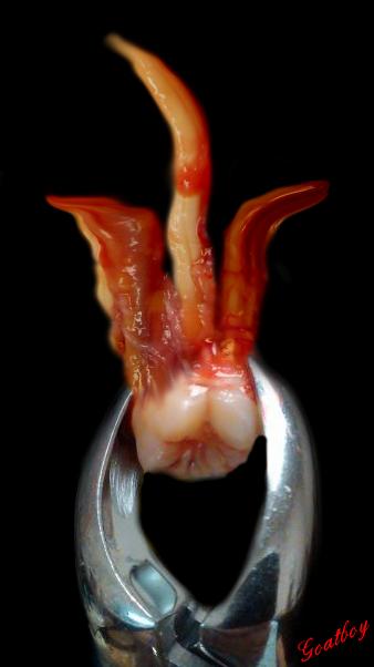 devil tooth